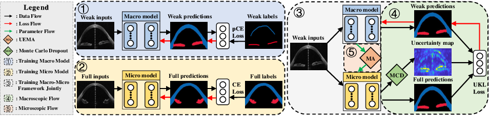 Figure 1 for A Macro-Micro Weakly-supervised Framework for AS-OCT Tissue Segmentation