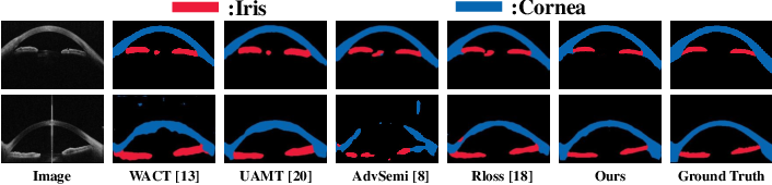 Figure 4 for A Macro-Micro Weakly-supervised Framework for AS-OCT Tissue Segmentation