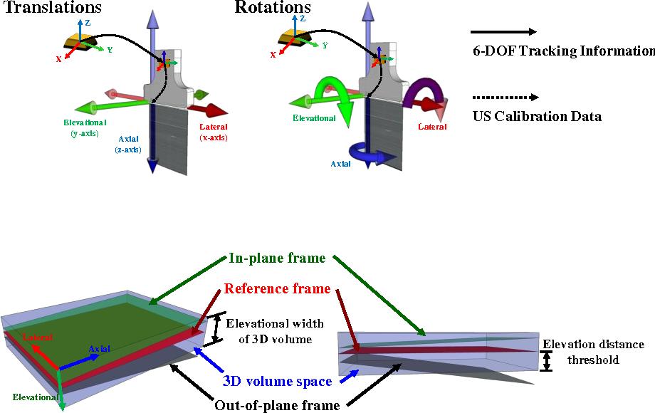 Ultrasound Probe Reference Frame PA Signal Background Noise ...
