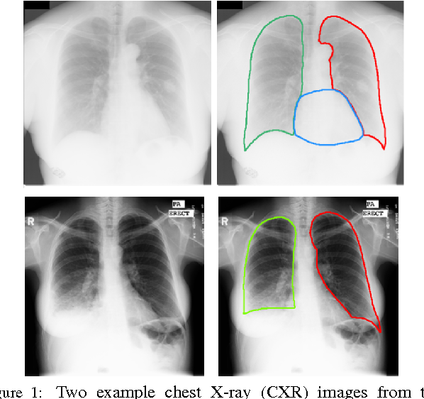 Figure 1 for SCAN: Structure Correcting Adversarial Network for Organ Segmentation in Chest X-rays