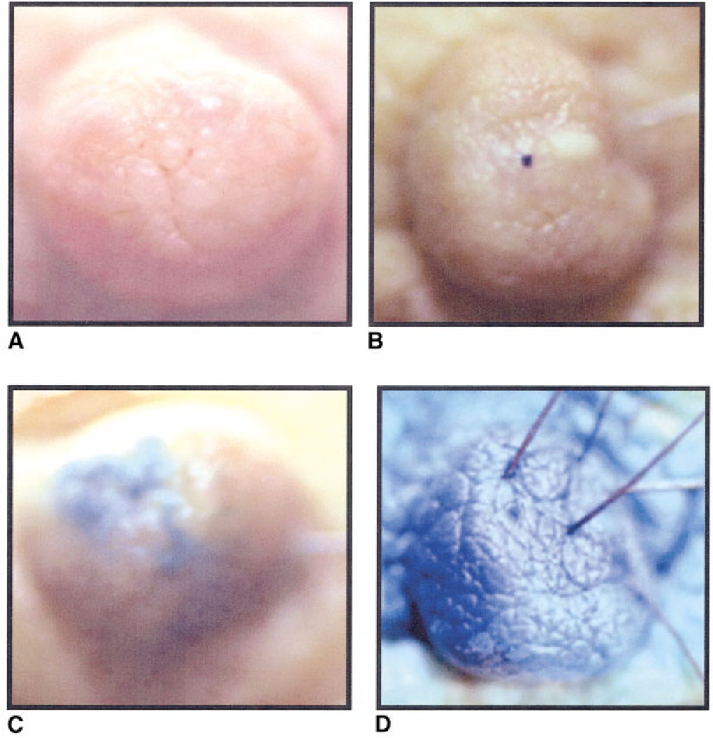 Figure 2 from Anatomy of the nipple and breast ducts revisited ...