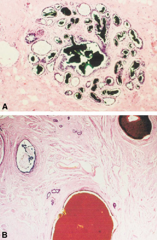 Figure 3 from Anatomy of the nipple and breast ducts revisited ...