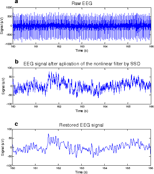 Fig. 3. Illustrative application of the proposed methodology for gradient artefact correction: (a) Typical raw EEG signal; (b) EEG after application of the nonlinear filter in the raw EEG; (c) restored EEG signal (J = 200).