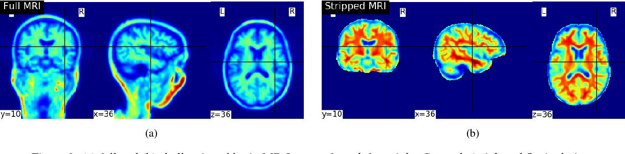 Figure 3 for End-to-End Parkinson Disease Diagnosis using Brain MR-Images by 3D-CNN