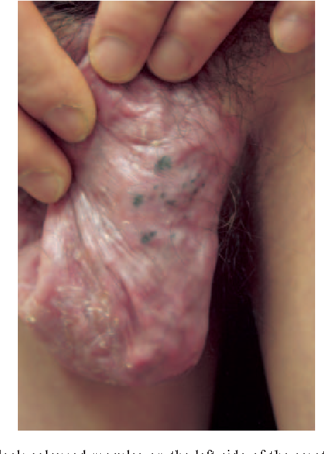 Figure 1 from Scrotal eczema-like lesion of secondary syphilis in an