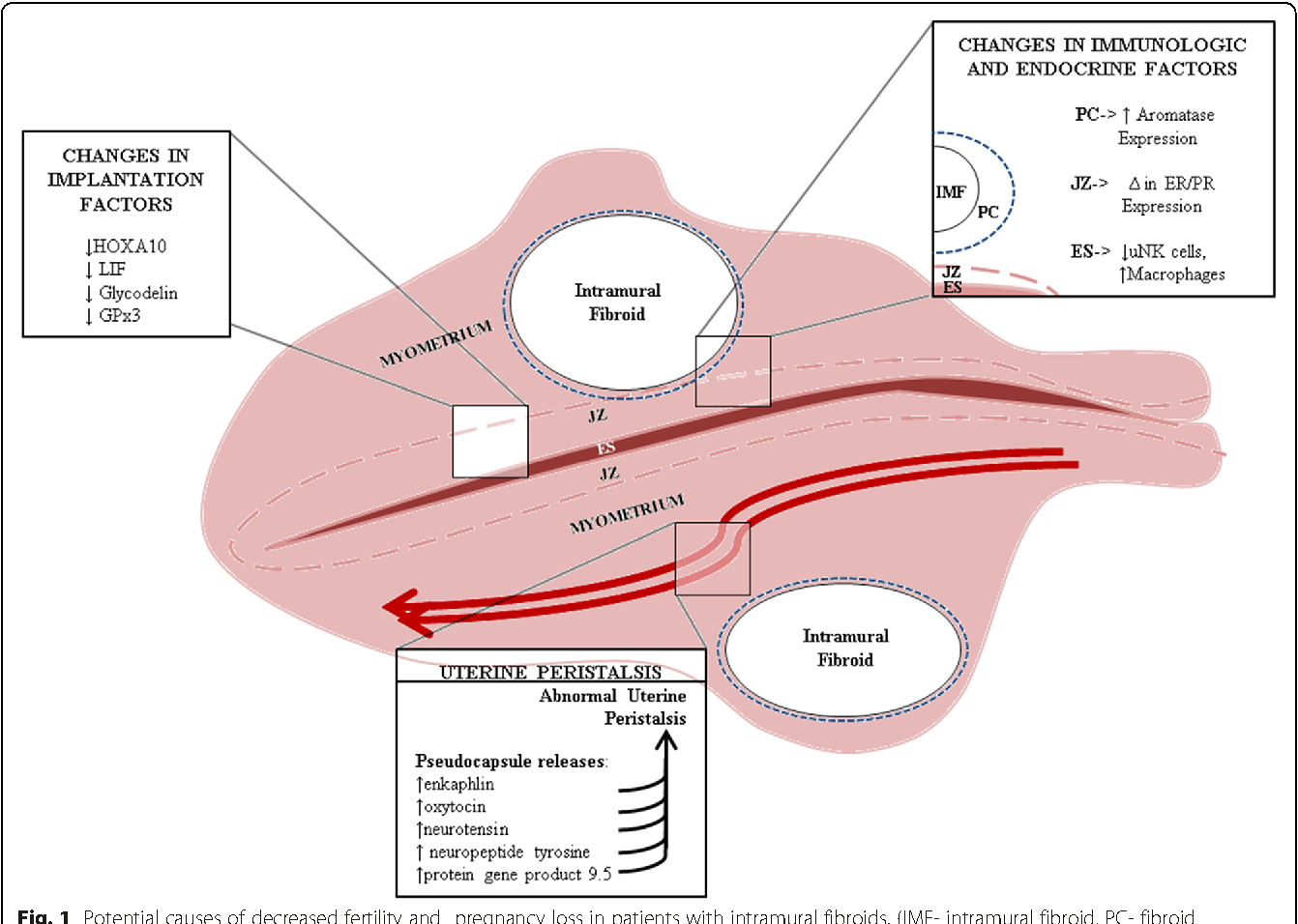 Figure 1 from Potential causes of subfertility in patients with