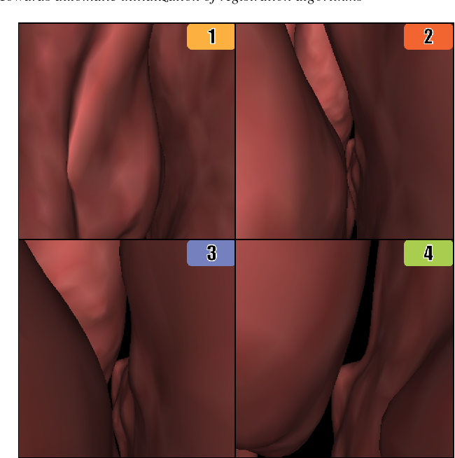 Figure 2 for Towards automatic initialization of registration algorithms using simulated endoscopy images