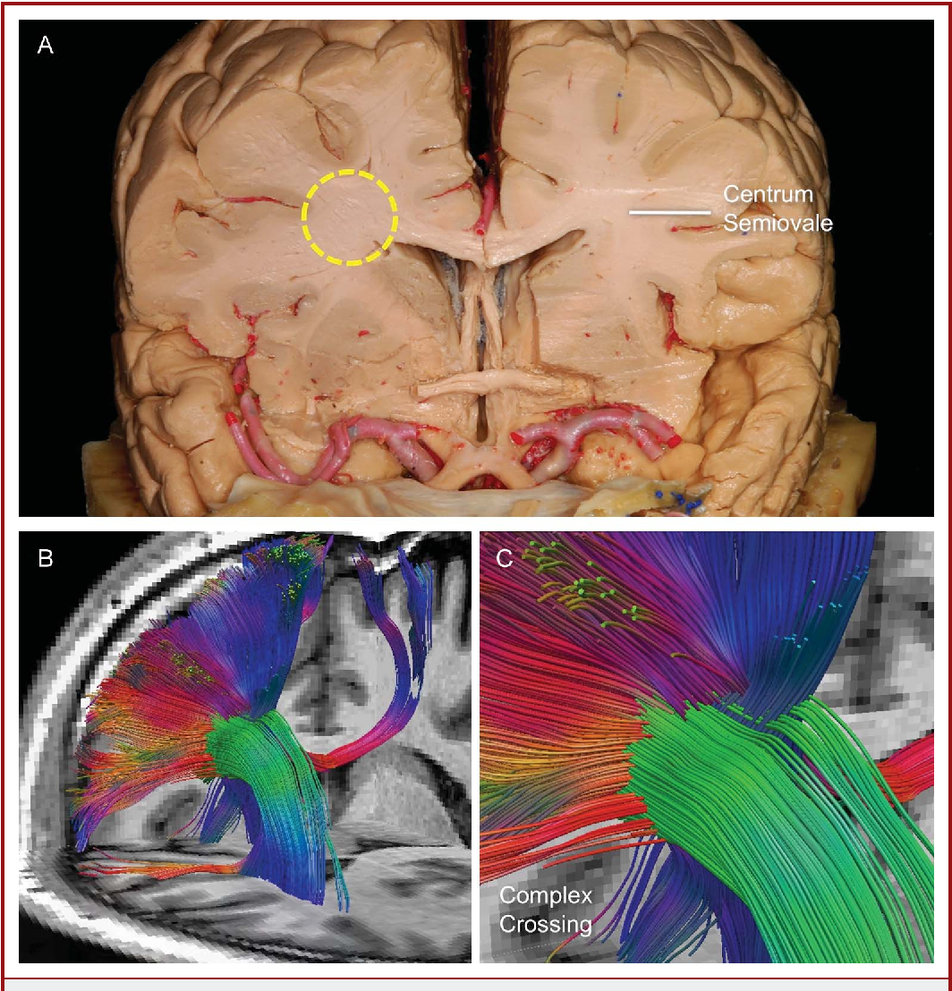 Figure 6 From High Definition Fiber Tractography Of The Human Brain
