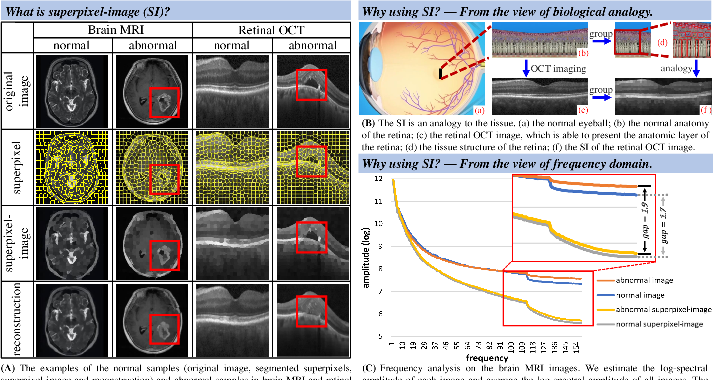 Figure 1 for Proxy-bridged Image Reconstruction Network for Anomaly Detection in Medical Images