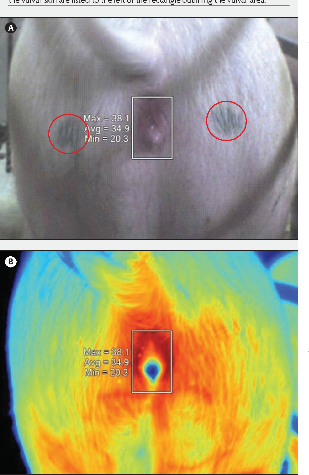 Figure 1 from Vulvar skin temperature changes significantly ...