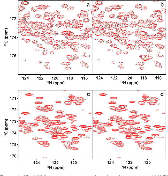 Figure 4 for Accelerated Nuclear Magnetic Resonance Spectroscopy with Deep Learning