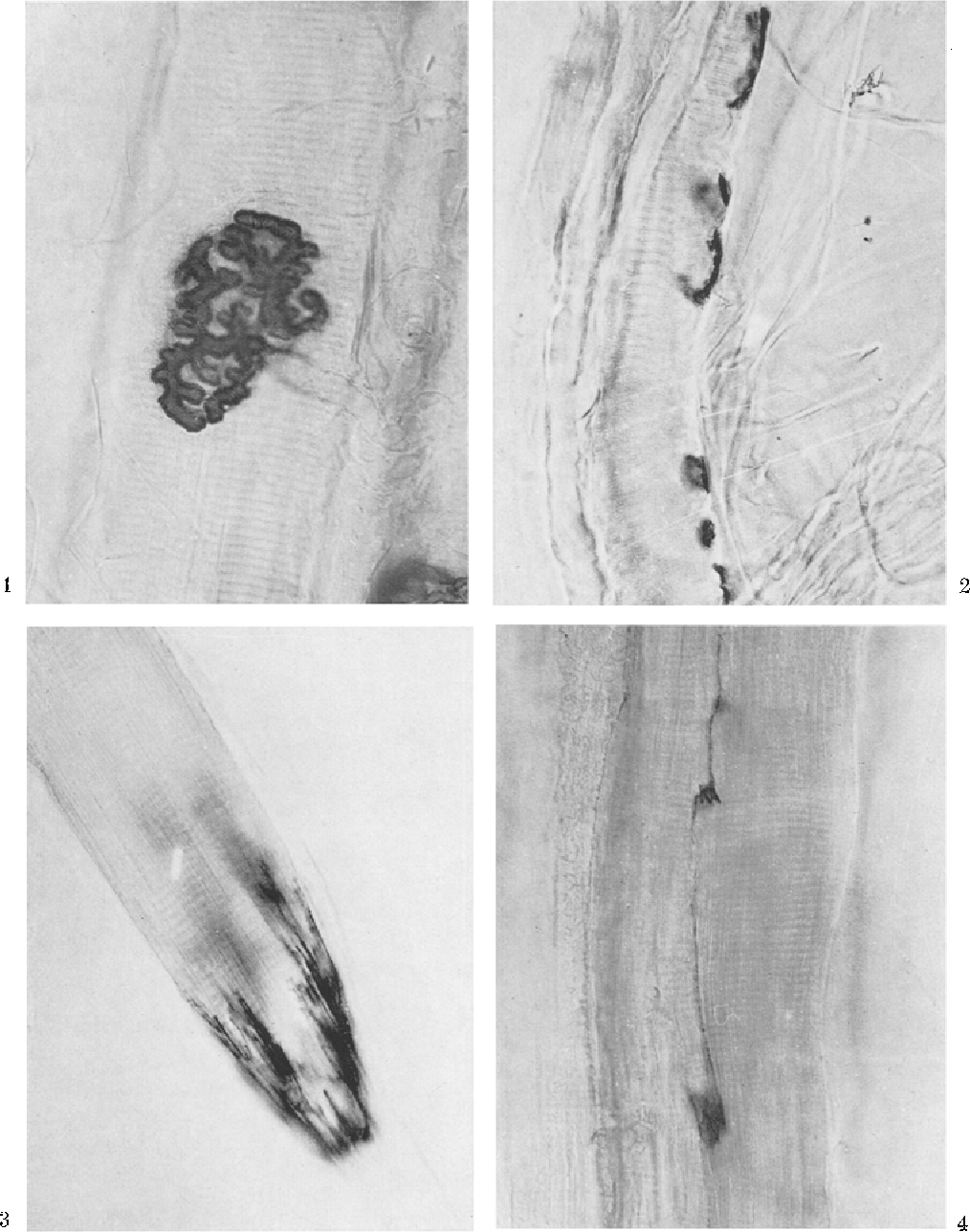 Fig. 1. Large motor endplate of a focally innervated muscle fiber of eat rectus bulbi lateralis muscle. Koelle. • 300