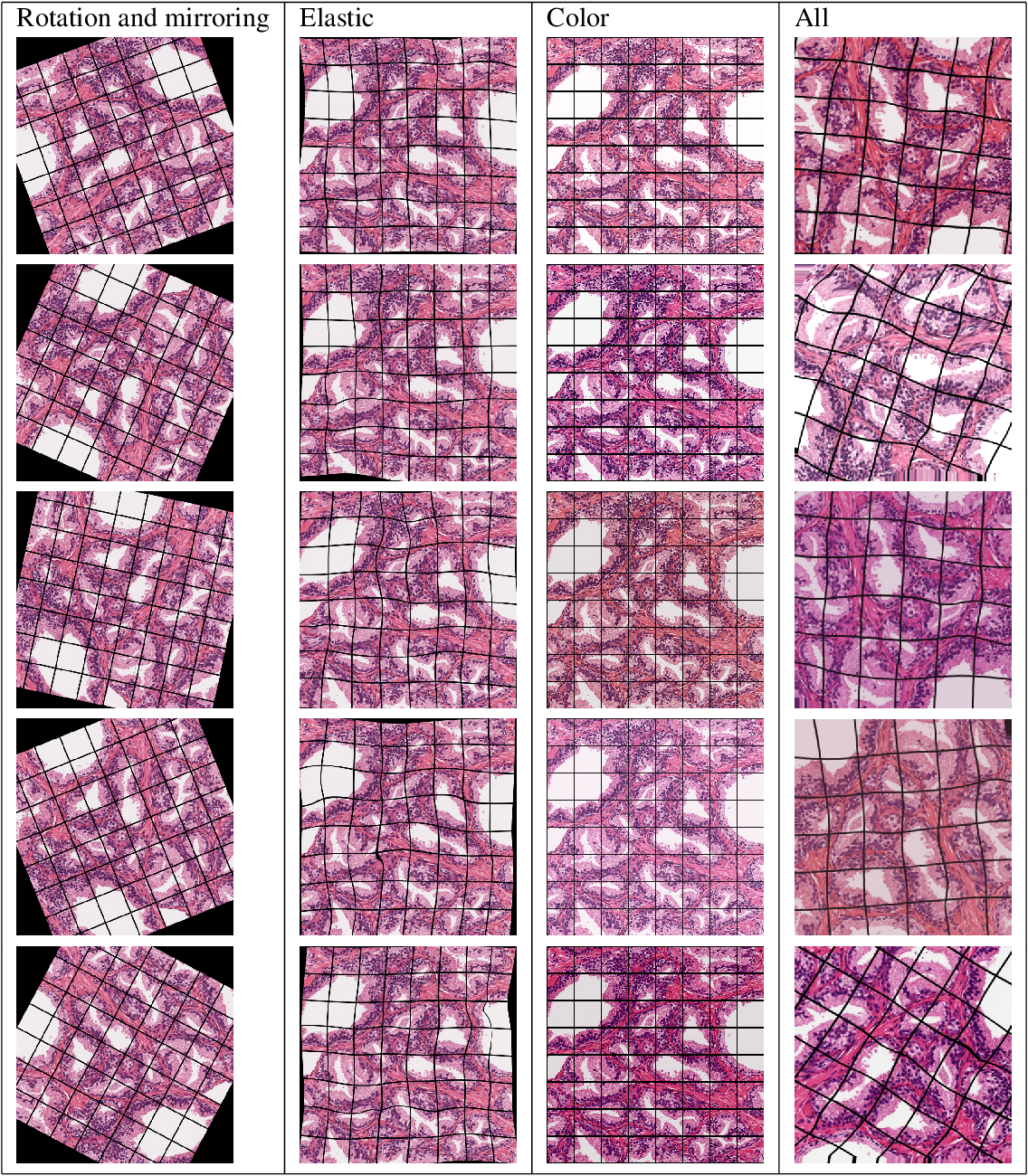 Figure 4 for Segmenting Potentially Cancerous Areas in Prostate Biopsies using Semi-Automatically Annotated Data