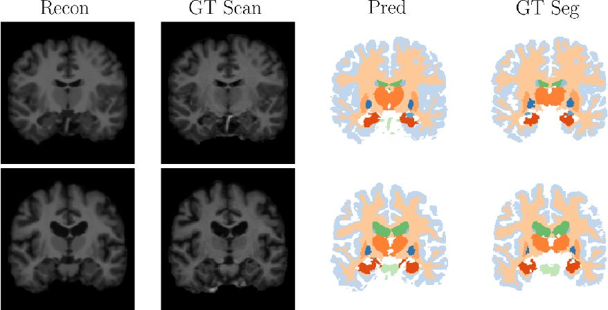 Figure 4 for An Auto-Encoder Strategy for Adaptive Image Segmentation