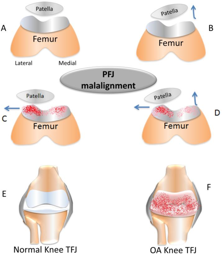 Figure 1 from Functional Anatomy in Knee Osteoarthritis ...