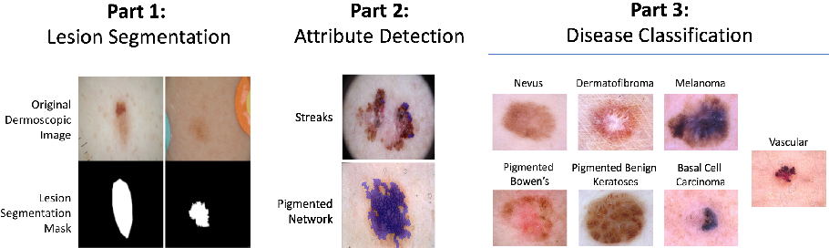 Figure 1 for Skin Lesion Analysis Toward Melanoma Detection 2018: A Challenge Hosted by the International Skin Imaging Collaboration (ISIC)