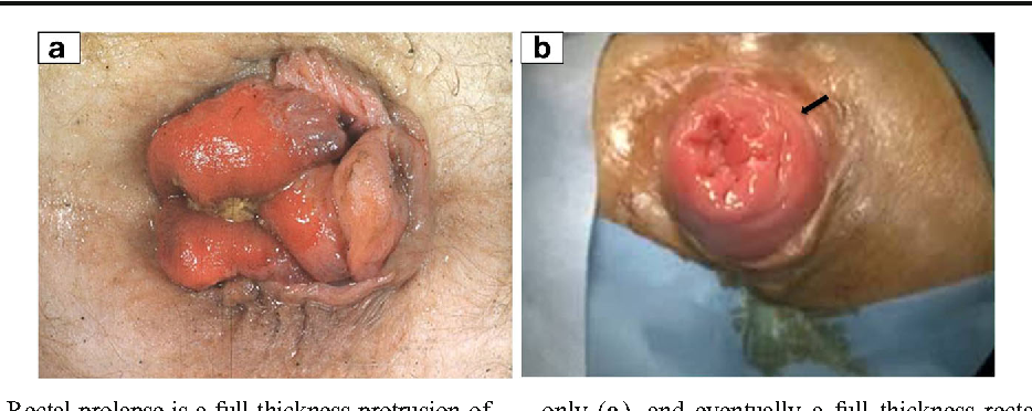 Figure 1 From Rectal Prolapse An Overview Of Clinical Features -2809