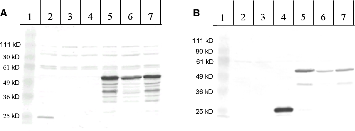FIG. 7. The cheZ-gfp gene directs production of a full-length CheZ-GFP fusion protein. Protein extracts were prepared from each of the strains indicated below and separated by electrophoresis on 10% SDS-polyacrylamide cels. Expression of GFP or CheZ-GFP from paraBAD in plasmids pBJC102 and pBJC101, respectively, was induced by addition of 0.002% arabinose (lanes 4 and 5), and expression of chromomosomally encoded CheZ-GFP from ptac was induced by addition of 1 mM IPTG (lane 7). Expression of CheZ-GFP from ptac plasmid pBJC104 (lane 6) is in the absence of inducer. Lane 1, molecular weight standards; lane 2, RP437 (pBAD18); lane 3, RP1616 (pBAD18); lane 4, RP1616 (pBJC102); lane 5 RP1616 (pBJC101); lane 6, RP1616 (pBJC104); lane 7, BC200. (A) Immunoblot developed with CheZ antiserum. (B) Immunoblot developed with GFP antiserum.