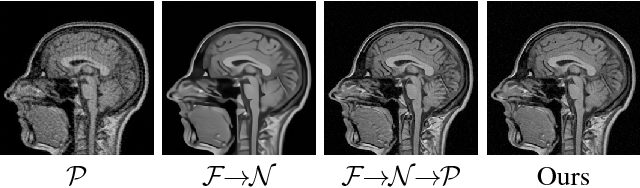 Figure 1 for A Theoretically Guaranteed Deep Optimization Framework for Robust Compressive Sensing MRI