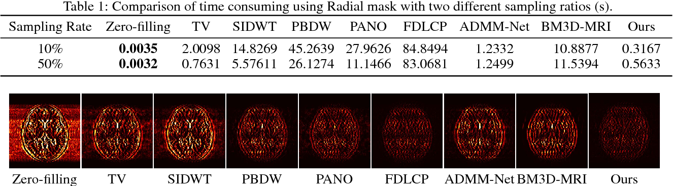 Figure 2 for A Theoretically Guaranteed Deep Optimization Framework for Robust Compressive Sensing MRI