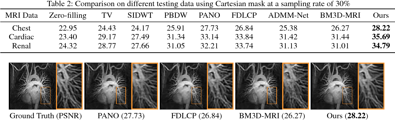 Figure 4 for A Theoretically Guaranteed Deep Optimization Framework for Robust Compressive Sensing MRI