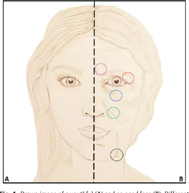 Figure 4 From The Anatomy Of The Aging Face A Review Semantic