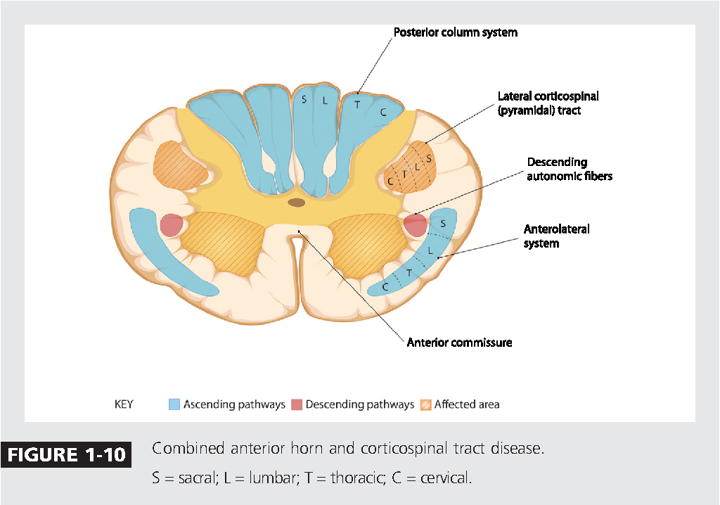 Figure 1-10 from Spinal cord functional anatomy. - Semantic Scholar