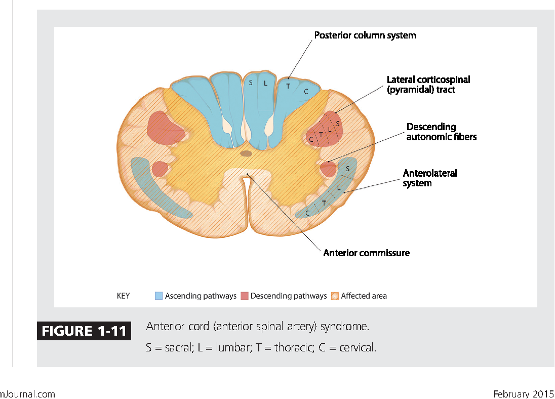 Figure 1-11 from Spinal cord functional anatomy. - Semantic Scholar