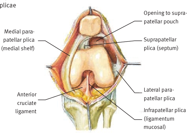 Figure 1 from Medial plica syndrome. - Semantic Scholar