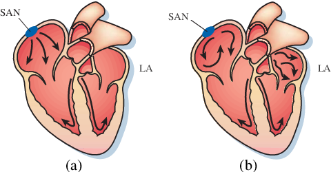 Figure 1 for Medical Image Analysis on Left Atrial LGE MRI for Atrial Fibrillation Studies: A Review