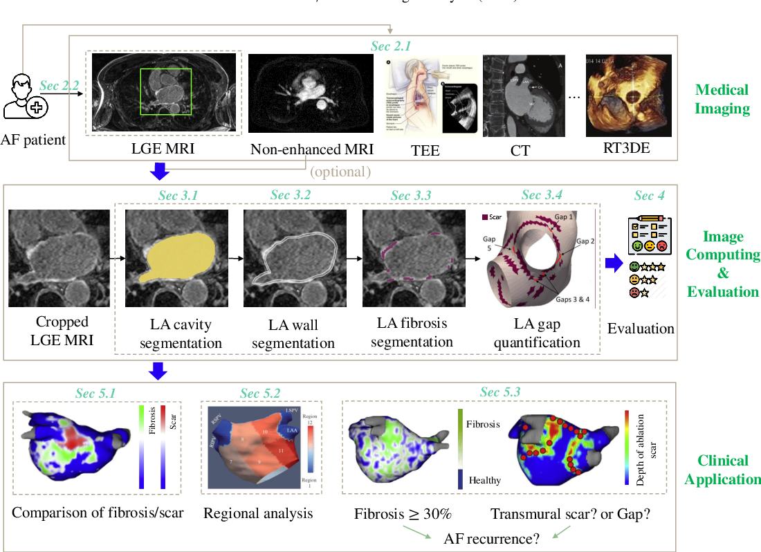 Figure 3 for Medical Image Analysis on Left Atrial LGE MRI for Atrial Fibrillation Studies: A Review