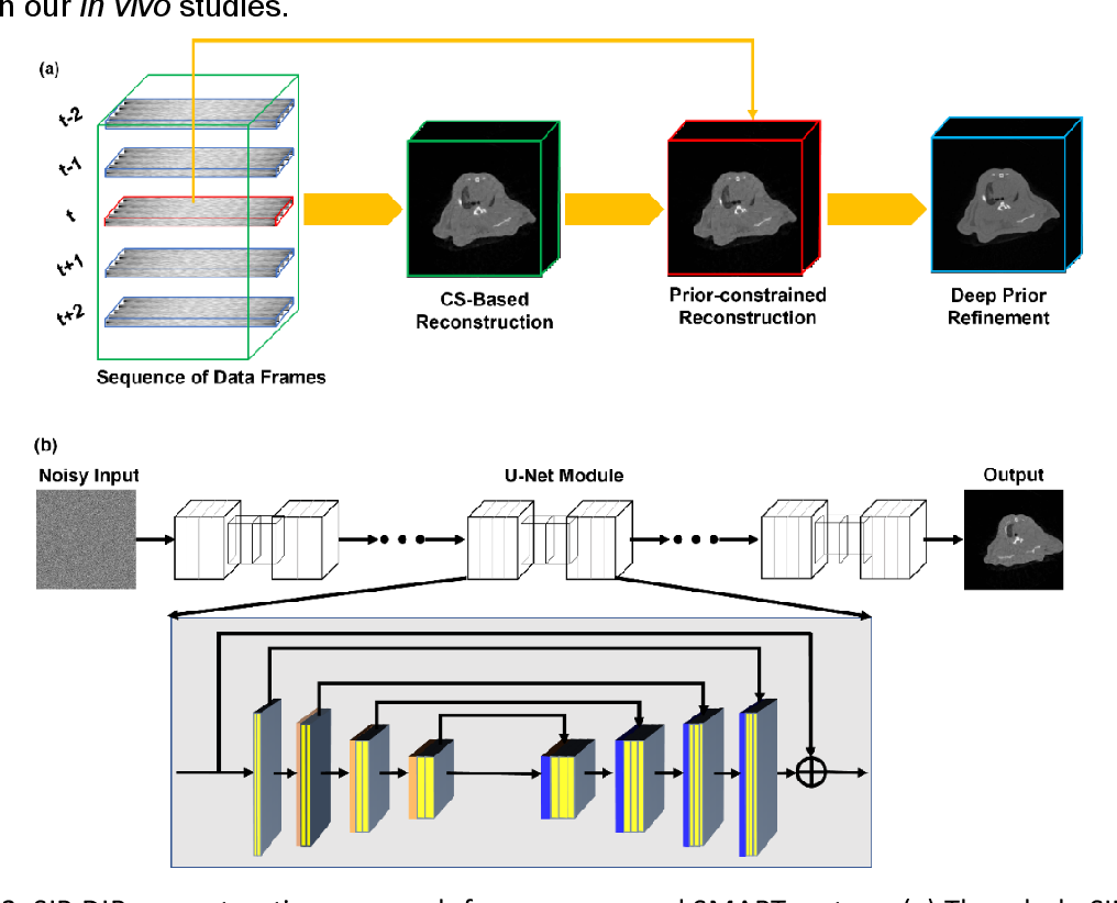 Figure 2 for Stationary Multi-source AI-powered Real-time Tomography (SMART) for Dynamic Cardiac Imaging