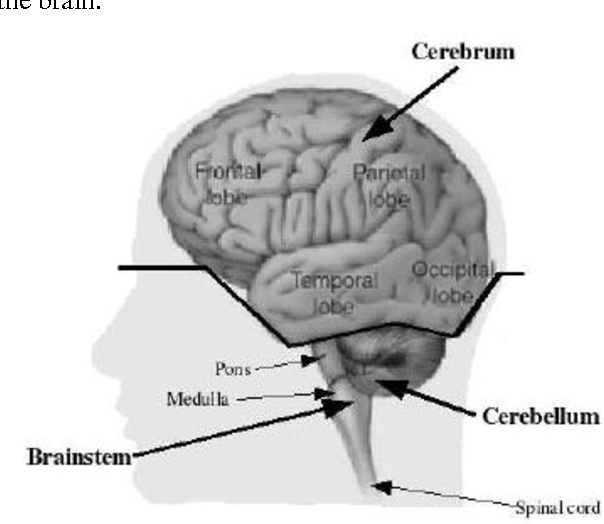 Figure 1 From D Brain Tumors And Internal Brain Structures