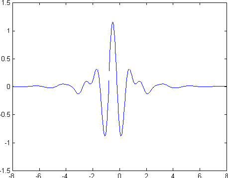 Figure 1 from ECG Signal Enhancement Using Wavelet Transform