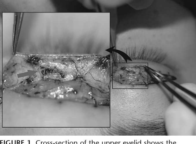 Tissue thread grafting: nonincisional double-eyelid operation