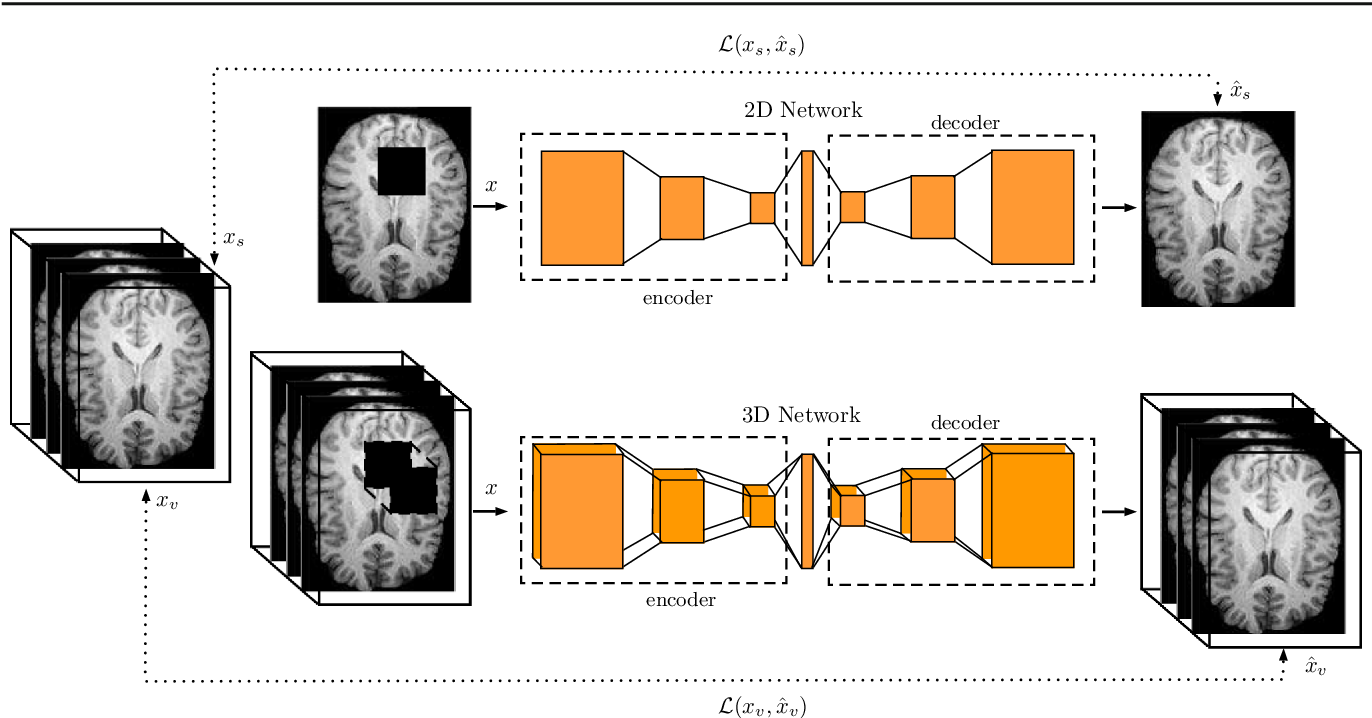Figure 1 for 3-Dimensional Deep Learning with Spatial Erasing for Unsupervised Anomaly Segmentation in Brain MRI