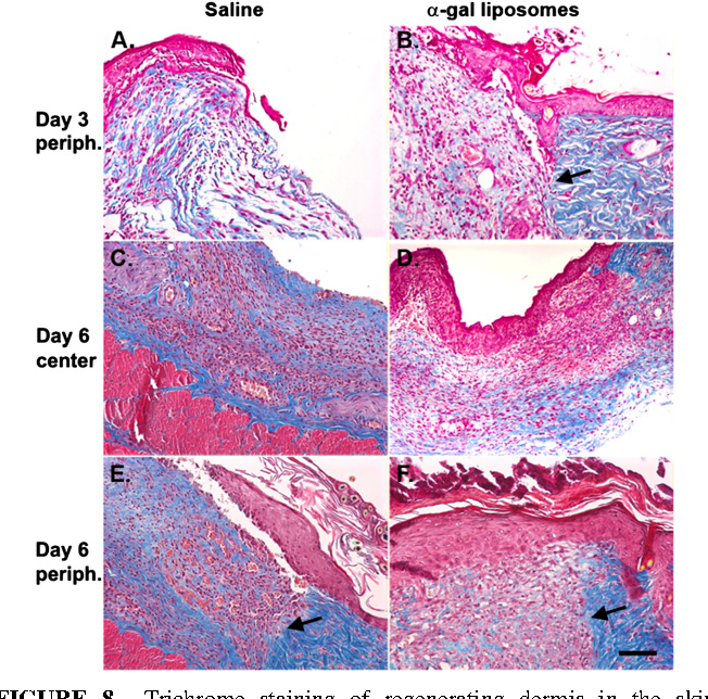 Figure 8 from Interaction Accelerates Wound Healing -Gal