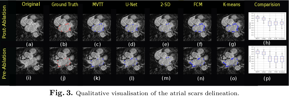 Figure 3 for Multiview Two-Task Recursive Attention Model for Left Atrium and Atrial Scars Segmentation