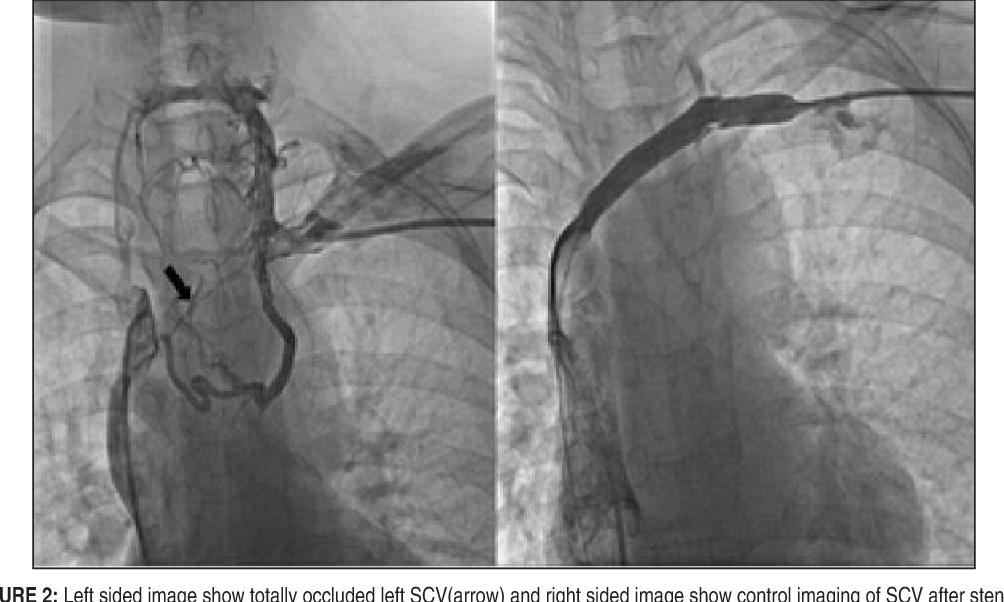 FIGURE 2: Left sided image show totally occluded left SCV(arrow) and right sided image show control imaging of SCV after stenting.