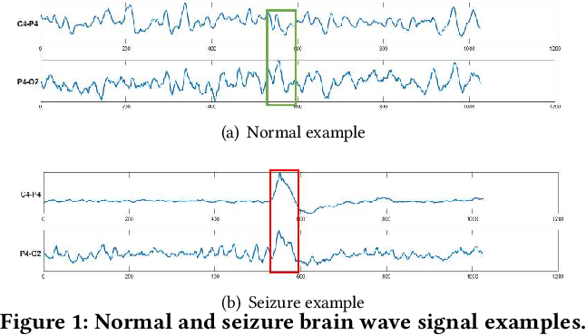 Figure 1 for Explainable Multivariate Time Series Classification: A Deep Neural Network Which Learns To Attend To Important Variables As Well As Informative Time Intervals