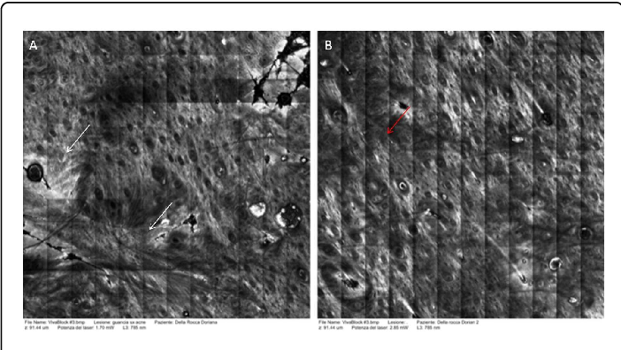 Figure 4 from Confocal Microscopy Images to Monitor Skin Needling in