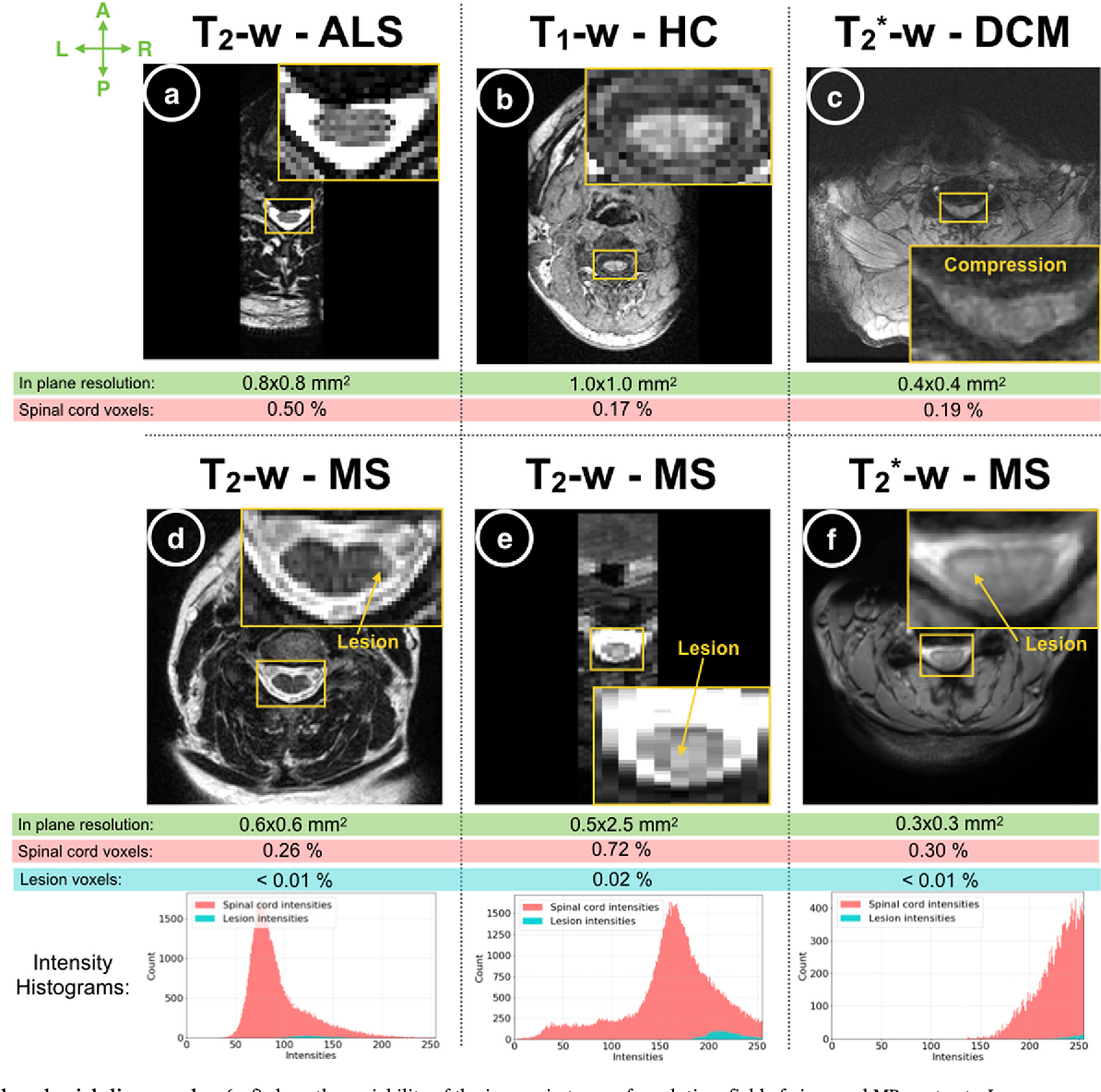 Figure 1 for Automatic segmentation of the spinal cord and intramedullary multiple sclerosis lesions with convolutional neural networks