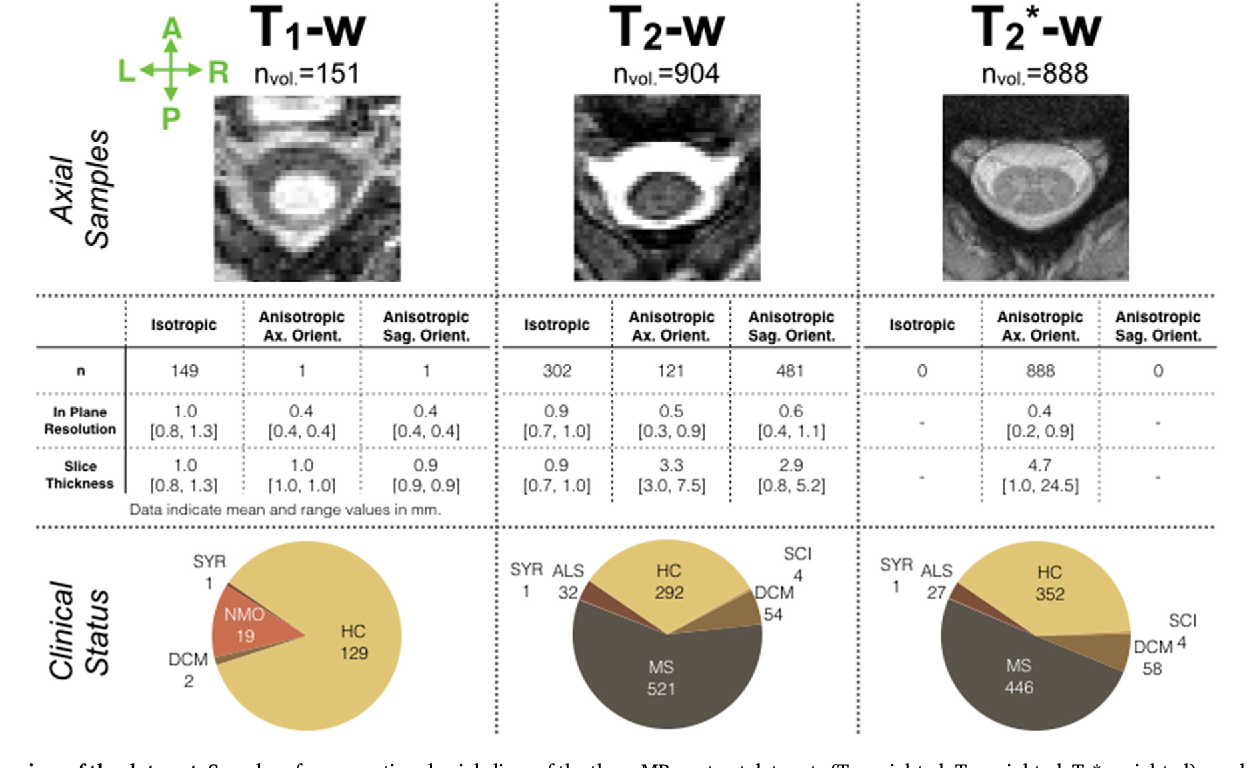 Figure 3 for Automatic segmentation of the spinal cord and intramedullary multiple sclerosis lesions with convolutional neural networks