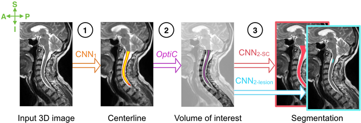 Figure 4 for Automatic segmentation of the spinal cord and intramedullary multiple sclerosis lesions with convolutional neural networks