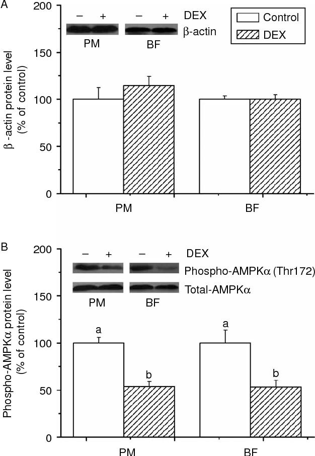 Dexamethasone facilitates lipid accumulation in chicken skeletal ...