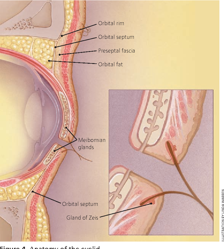 Figure 4 from Differential diagnosis of the swollen red eyelid ...