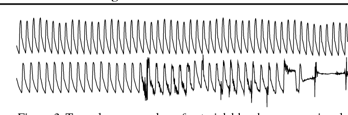 Figure 4 for Not to Cry Wolf: Distantly Supervised Multitask Learning in Critical Care
