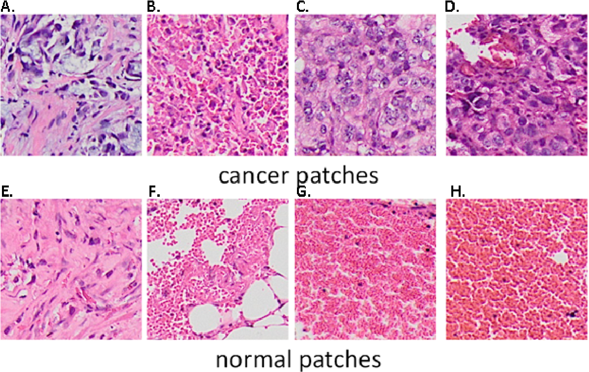 Figure 3 for Computer-aided diagnosis of lung carcinoma using deep learning - a pilot study