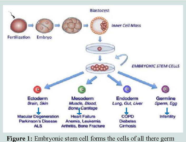 Figure 1 from Stem Cell Therapies in Regenerative Medicine and
