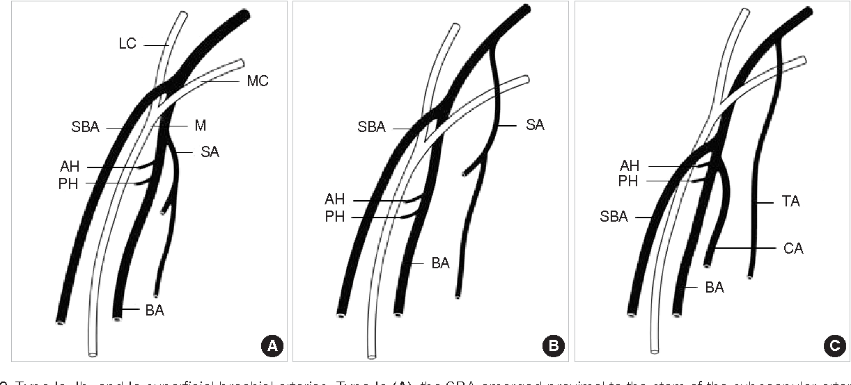 Variations Of The Superficial Brachial Artery In Korean Cadavers